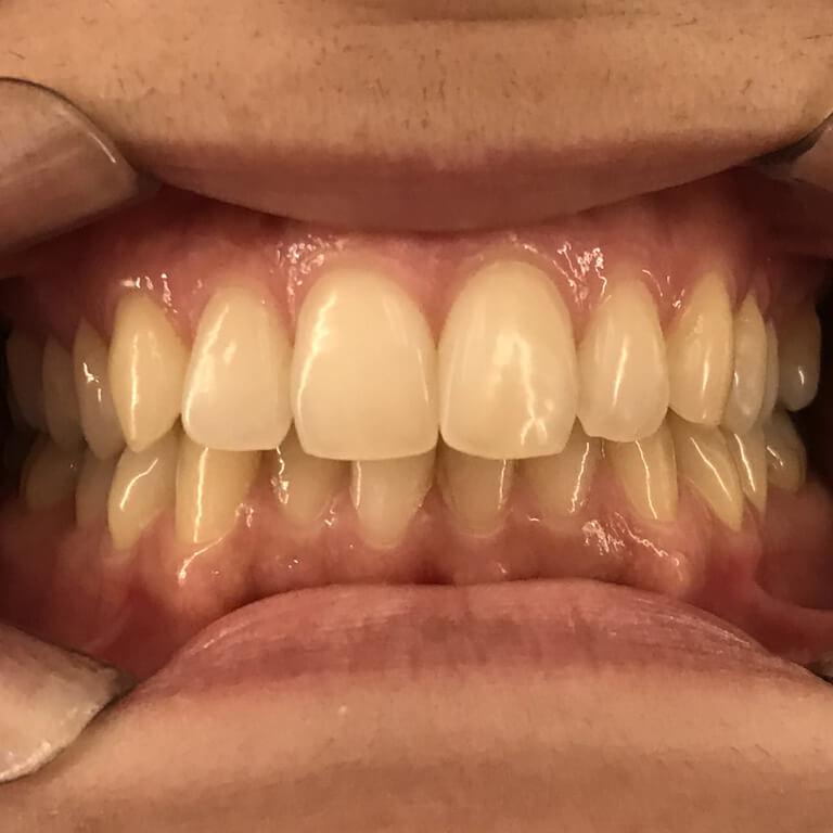 Resultado do tratamento de aparelho transparente