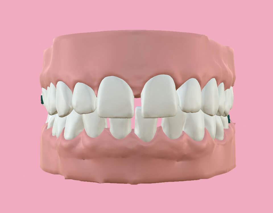 Dentes com espaçamento